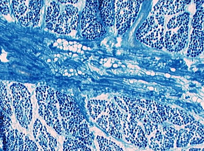 mikorskop muskelgewebe bilder beschreibung